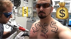 Laser Tattoo Removal COST 💰| HOW MUCH