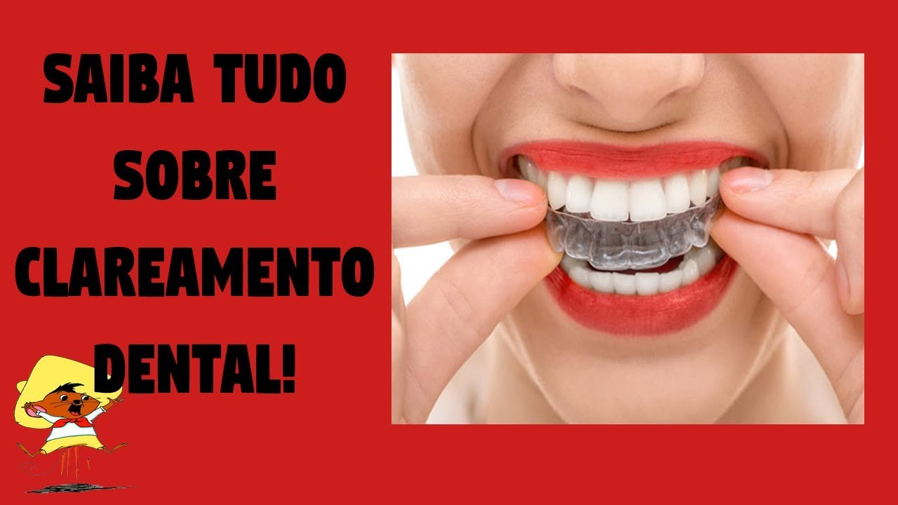 Clareamento Dental Caseiro E De Consultorio Diferenca Preco E