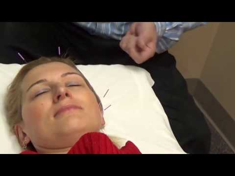 Acupuncture Treatment for pain, stress relief, hormonal balance and overall wellness