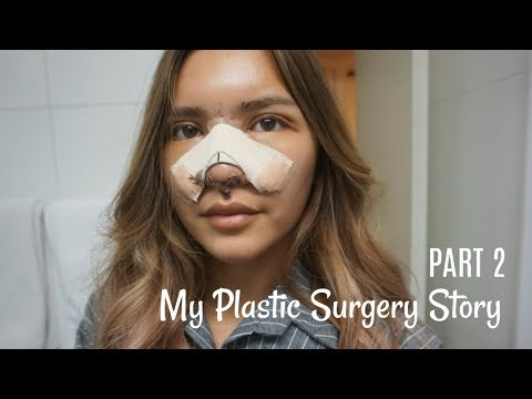 MY PLASTIC SURGERY STORY (PART 2) RECOVERY |  BAHASA INDONESIA (ENG SUB)