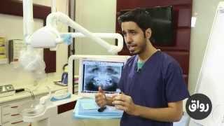 رواق: مدخل إلى طب الأسنان - المحاضرة 3 الجزء 3