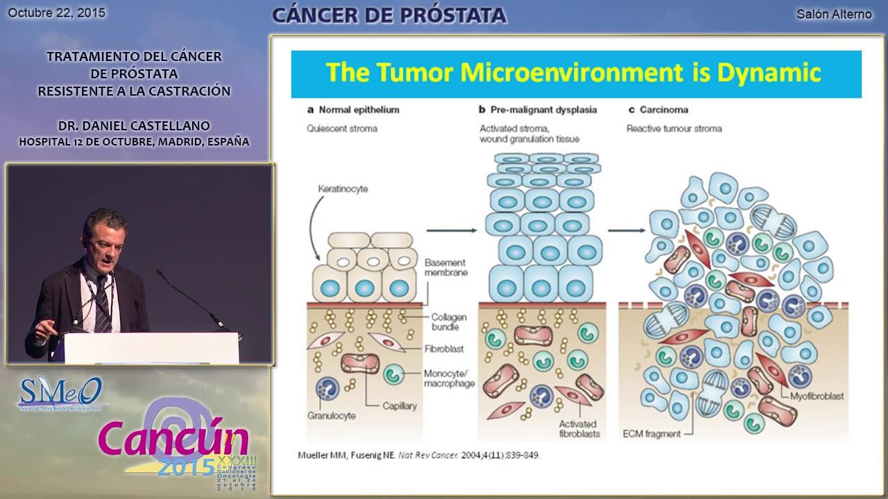 castración quirúrgica para el cáncer de próstata