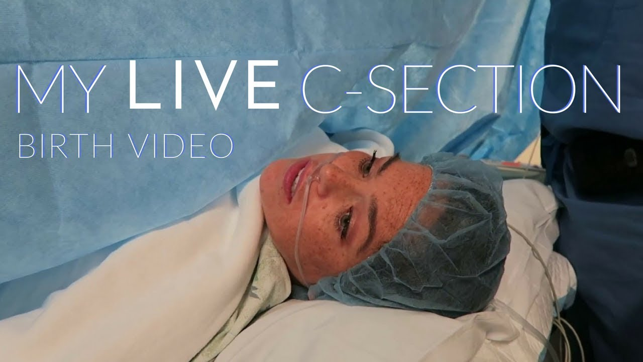 GRAPHIC ] My LIVE C Section