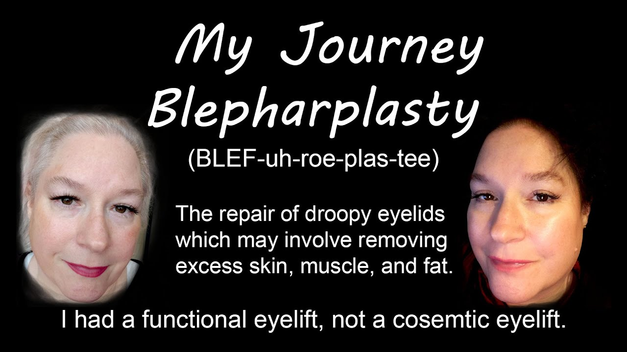 BLEPH WHAT! Eye-lift surgery for HOODED EYES oh my...