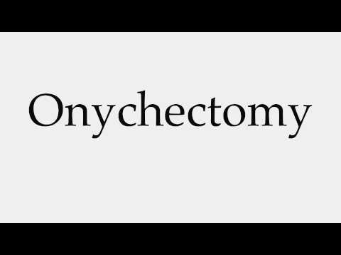 How to Pronounce Onychectomy