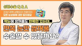 눈성형 Q&A! 쌍꺼풀수술 한쪽만 가능? - 눈…