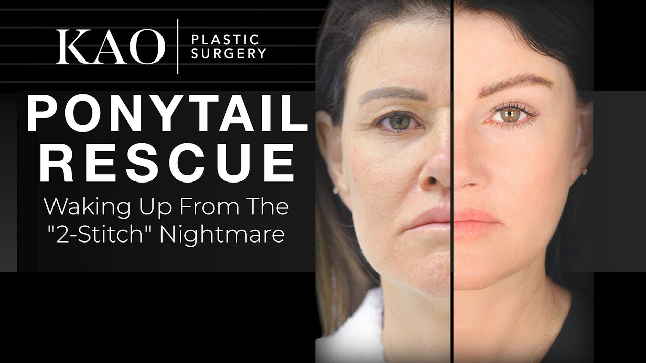 Plastic Surgery - Ponytail Rescue: Two Stitch Nightmare - Ponytail Facelift™ - Her Scars Disappear!