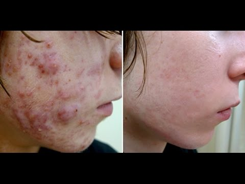 steroid cream induced acne