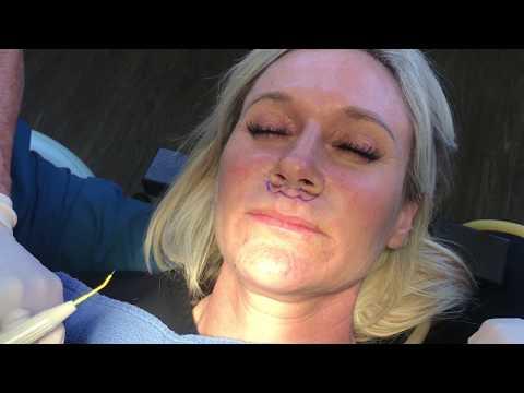 Upper Lip Lift Video with Michael Morrissette, DDS, FACS & Saj Jivraj Prosthodontist