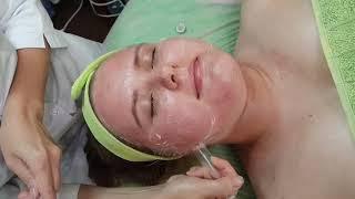 Вакуумный массаж лица. Видео урок
