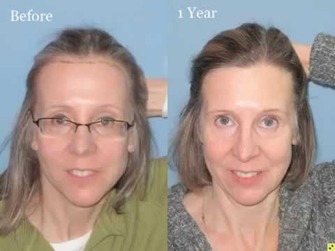 Female Hair Transplant Surgery Result by Shaprio Medical Group, Lowering Hairline