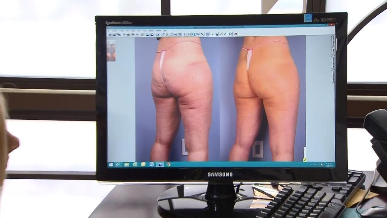This new procedure promises to dramatically improve your cellulite