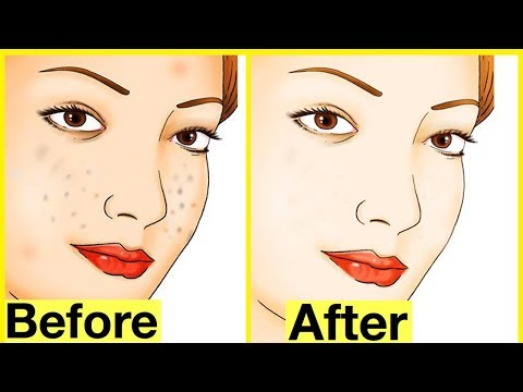 1 Week Challenge that Remove all Dark Marks/Spots from your Face | Dark Spots on Face Removal