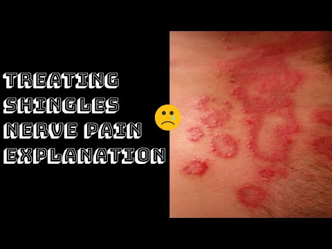 Treating Shingles Nerve Pain Explanation Youtube