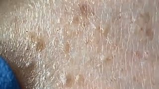 Blackheads.How to clean milia