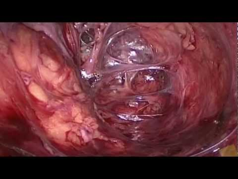 Laparoscopic dissection and anatomy of sacral nerve roots and pelvic ...