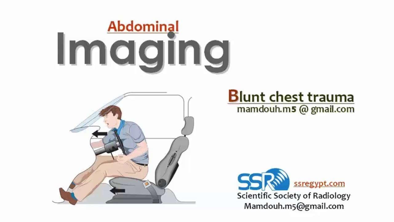 blunt chest trauma All blunt trauma patients should have a portable chest x-ray performed in the trauma resuscitation room the discussion on physical examination above highlights the inaccurracy of clinical signs in the trauma patient.