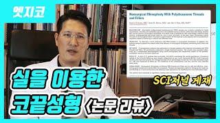 실을 이용한 코끝성형(feat.논문리뷰?)
