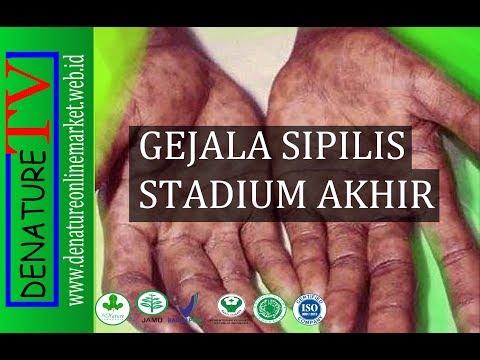 gejala-sipilis-stadium-akhir