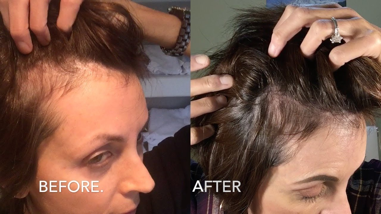 My Update On Monat Hair Products Before After Pics Youtube