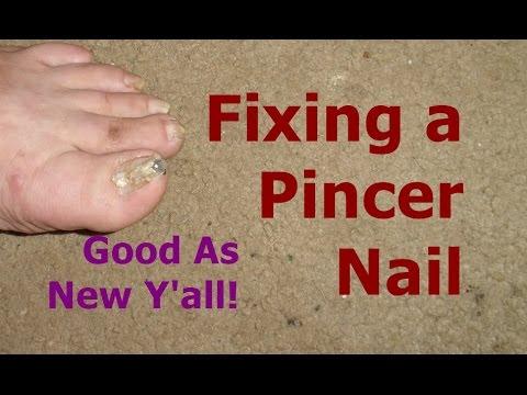 Fixing A Pincer Nail With A Glue Gun A Rock Youtube