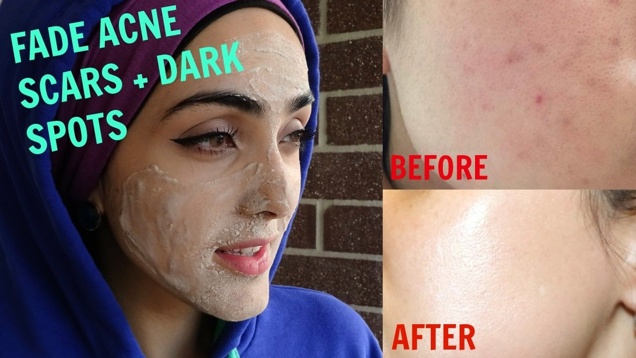 How To Get Rid Of Acne Scars Naturally At Home