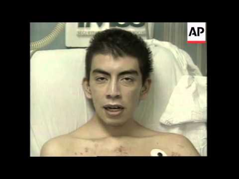 MEXICO: MEXICO CITY: FIRST ARTIFICIAL HEART TRANSPLANT PATIENT