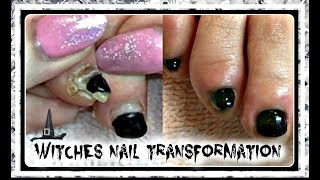 👣 How to Pedicure Tutorial Cleaning Witch Toenail Transformation😜 ✔