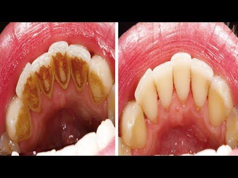 wie-man-zahnbelag-entfernt-ohne-zum-zahnarzt-gehen-zu-müssen!