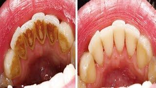 Wie man Zahnbelag entfernt ohne zum Zahnarzt gehen zu müssen!
