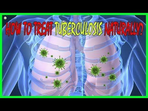 4 Effective Natural Home Remedies To Treat Tuberculosis Naturally - Tuberculosis Treatment