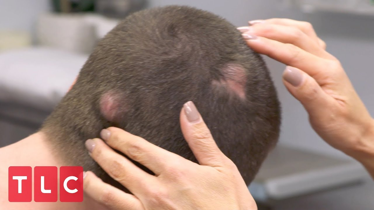Brandon Has Bumps All Over His Head | Dr  Pimple Popper