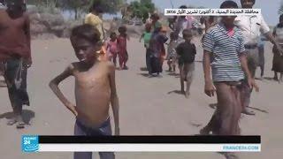 أطفال اليمن يعانون من الجوع وأكثر من 80 بالمئة من السكان بحاجة إلى مساعدات