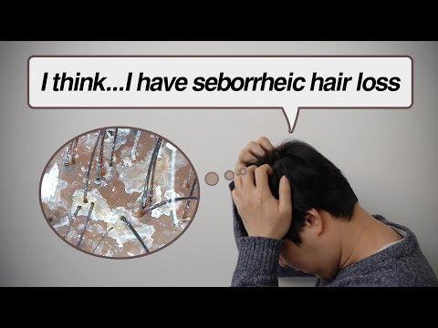 i-think-i-have-seborrheic-hair-loss
