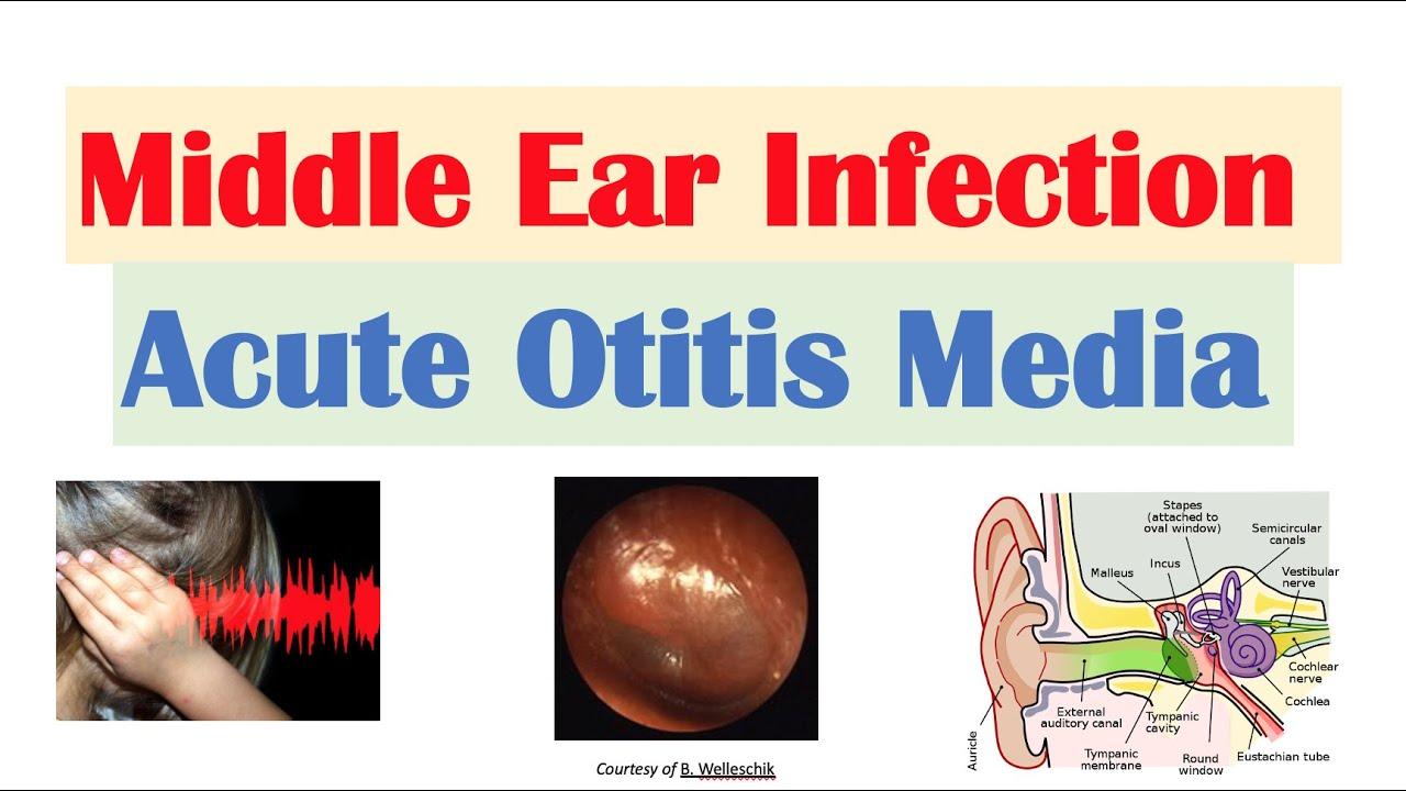 Middle Ear Infection (Acute Otitis Media) | Causes, Symptoms, Diagnosis, Treatment