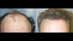 Long Island Neograft | Watch the Procedure and Before and After