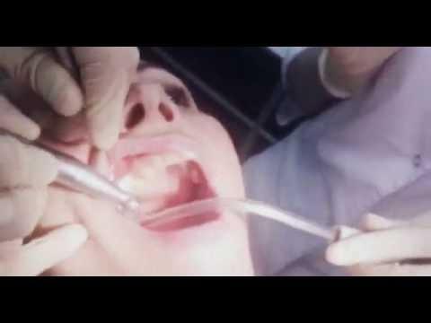 Имплантация/Установка формирователя десны.