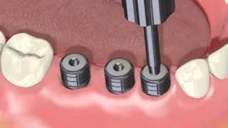 ADIN Implant - 3 implanty - chirurgia i protetyka (animacja) - www.adin-implants.pl