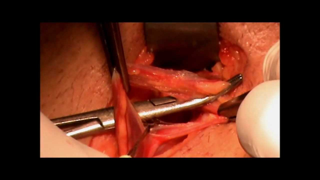osteitis pubis corticosteroid injection