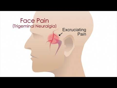 How to manage one sided facial pain? - Dr. Jayaprakash Ittigi.