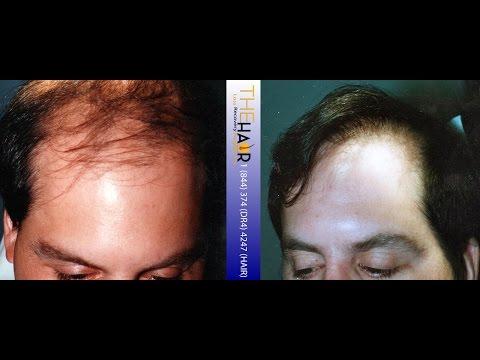 Toronto Hair Transplant Surgery
