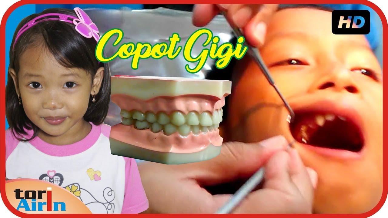 Cara Mengobati Sakit Gigi Pada Anak Usia 3 Tahun ...