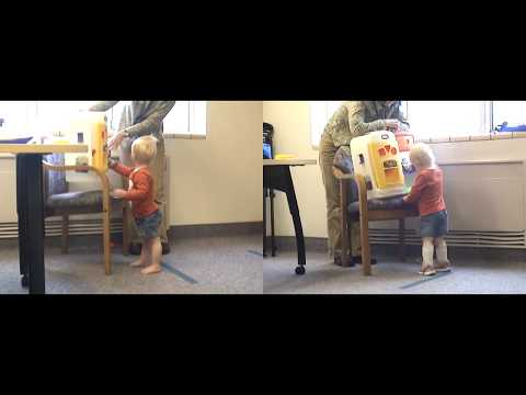 Before & After | Knee Hyperextension | JumpStart Kangaroo