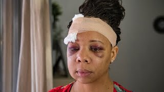 Police fracture protester's eye socket with projectile during George Floyd protest in Florida