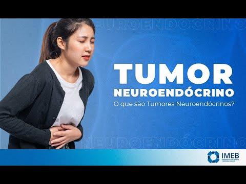tumor benigno de pancreas sintomas