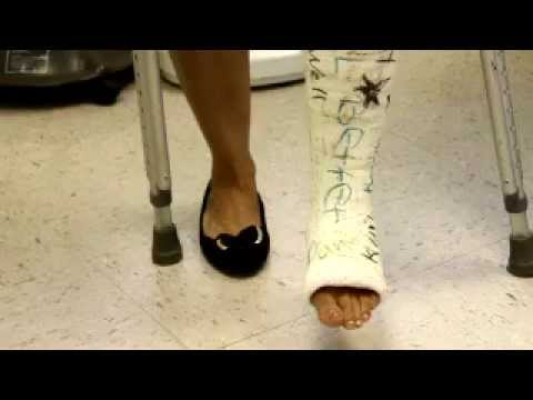 She hates her cast, i bet you dont?