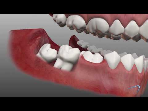 Wisdom Tooth Removal Information in Odessa TX | Permian Basin Oral Surgery & Dental Implant Center