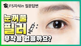 꺼진눈에 필러맞으면 효과 있나요? | 눈꺼풀필러 부작용…
