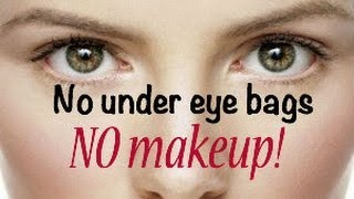 Get Rid of Bags Under Your Eyes Without Makeup!