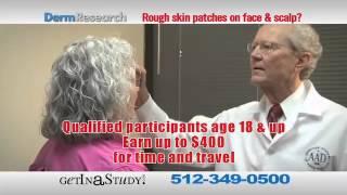 Actinic Keratosis Study - 4 Visits